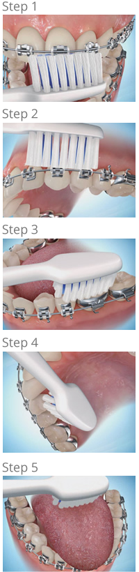 brushing steps - Petaluma Orthodontics