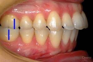Bite Classification - Petaluma Orthodontics