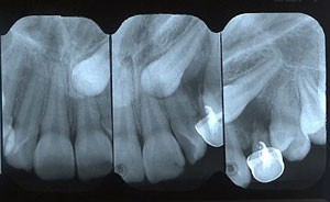 Impacted Teeth - Petaluma Orthodontics