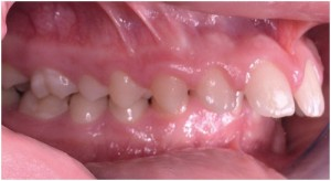 Common Problems - Petaluma Orthodontics
