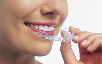 Petaluma Orthodontics - Invisalign
